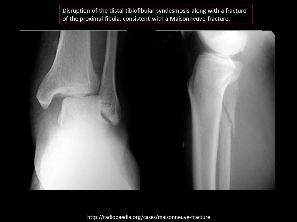 Disruption of the distal tibiofibular syndesmosis along with a fracture of the proximal fibula, consistent with a Maisonneuve fracture.