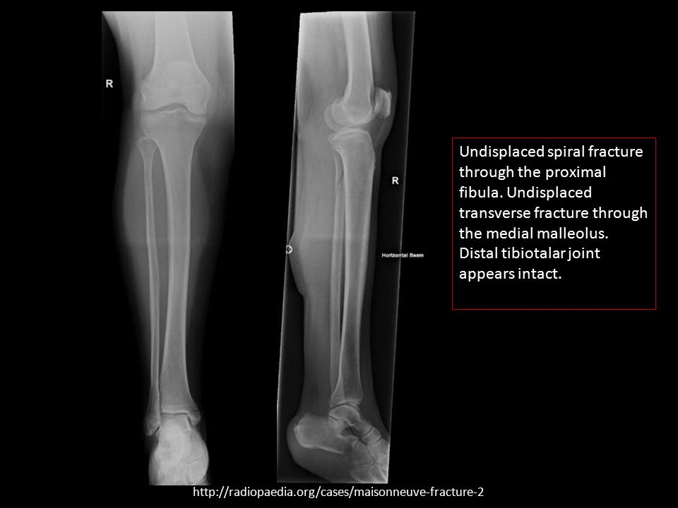 Undisplaced spiral fracture through the proximal fibula