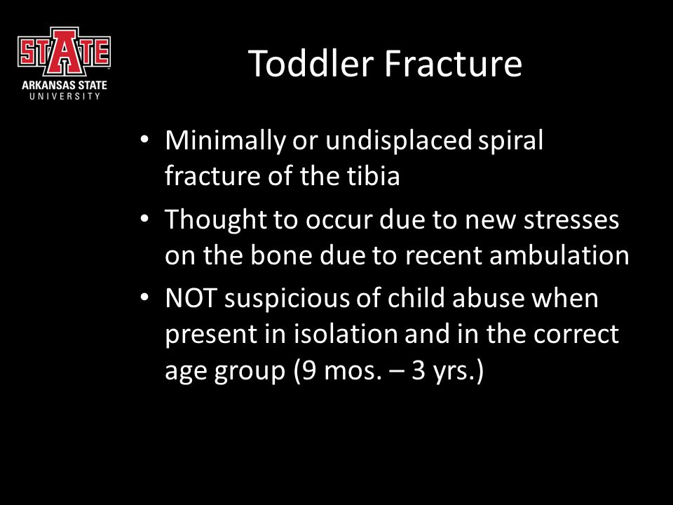 Toddler Fracture Minimally or undisplaced spiral fracture of the tibia