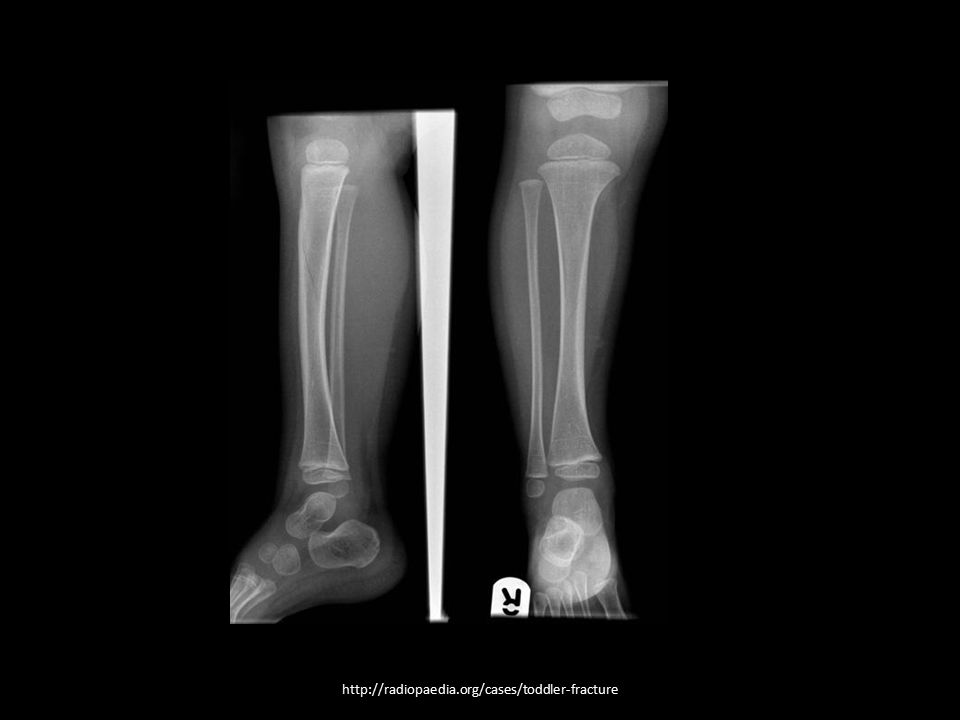 http://radiopaedia.org/cases/toddler-fracture