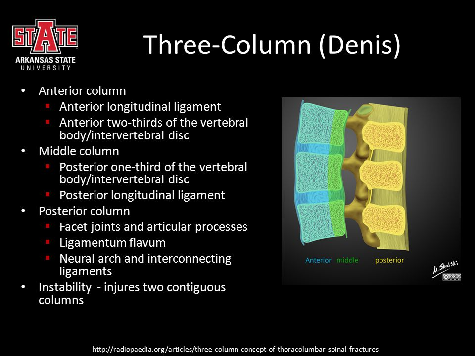 Three-Column (Denis) Anterior column Anterior longitudinal ligament