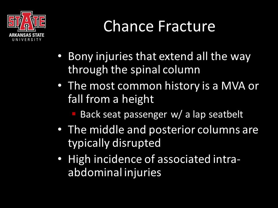 Chance Fracture Bony injuries that extend all the way through the spinal column. The most common history is a MVA or fall from a height.