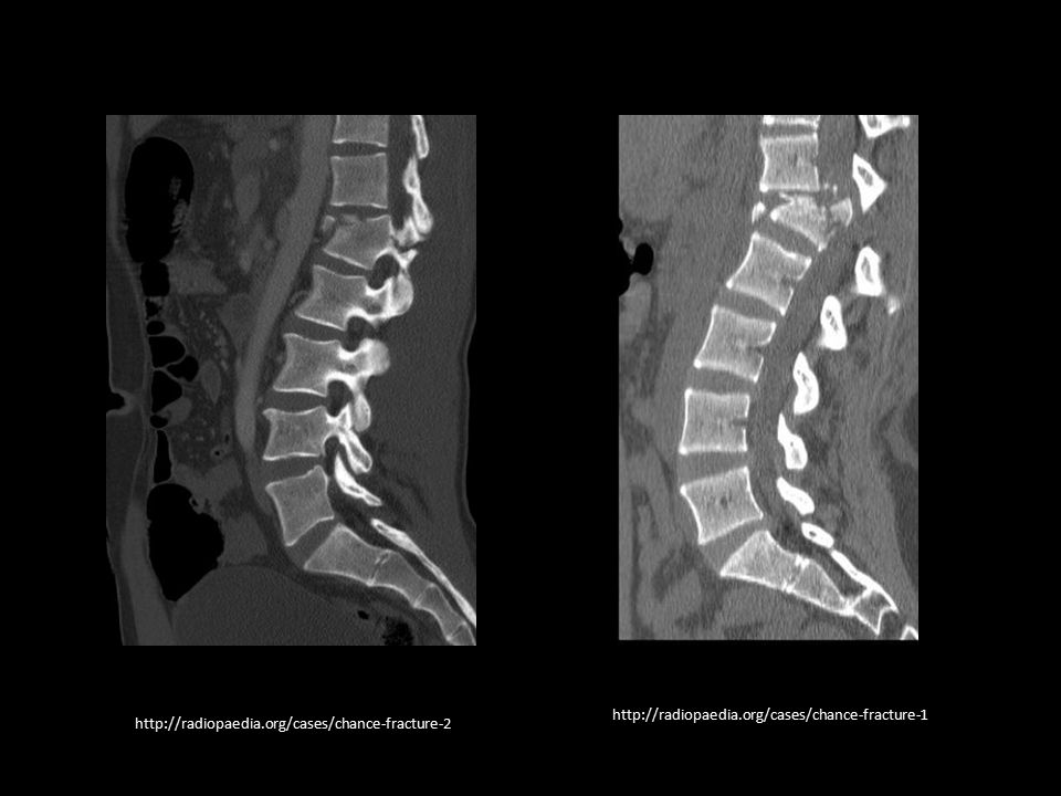 http://radiopaedia.org/cases/chance-fracture-1 http://radiopaedia.org/cases/chance-fracture-2