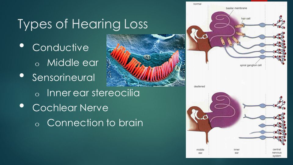 Types of Hearing Loss Conductive Middle ear Sensorineural
