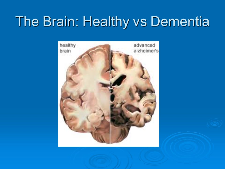 The Brain: Healthy vs Dementia