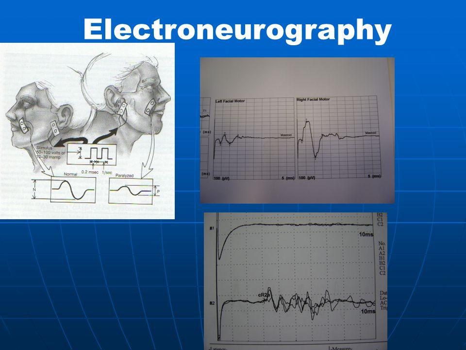 Electroneurography