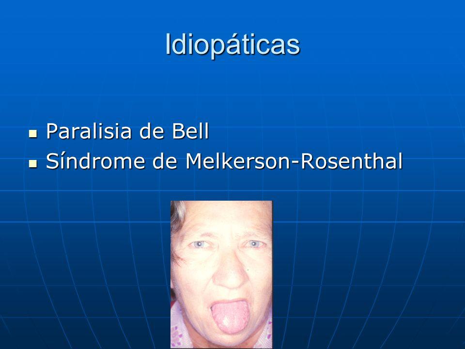 Idiopáticas Paralisia de Bell Síndrome de Melkerson-Rosenthal