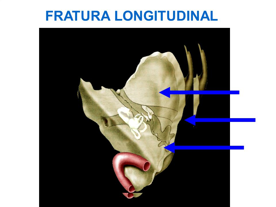 FRATURA LONGITUDINAL There may be three longitudinal fracture lines: