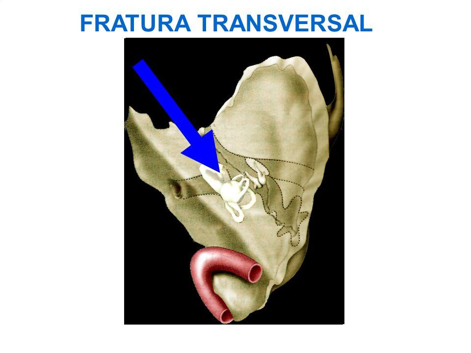 FRATURA TRANSVERSAL