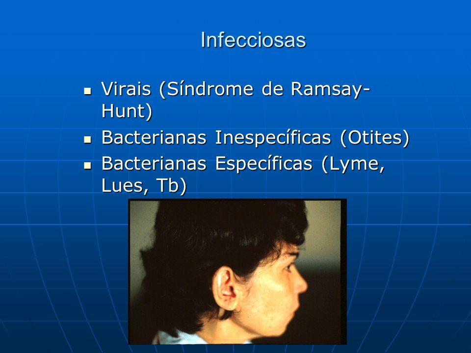 Infecciosas Virais (Síndrome de Ramsay-Hunt)