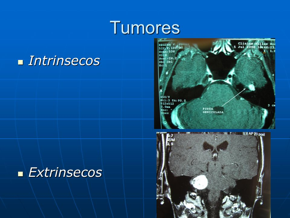 Tumores Intrinsecos Extrinsecos