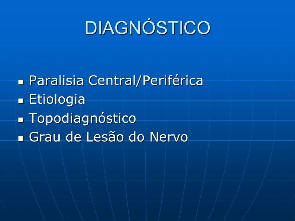 DIAGNÓSTICO Paralisia Central/Periférica Etiologia Topodiagnóstico
