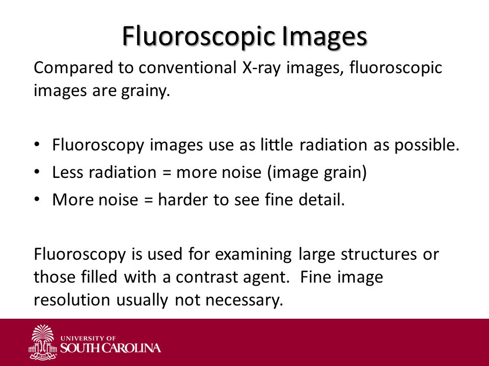 Fluoroscopic Images Compared to conventional X-ray images, fluoroscopic images are grainy. Fluoroscopy images use as little radiation as possible.