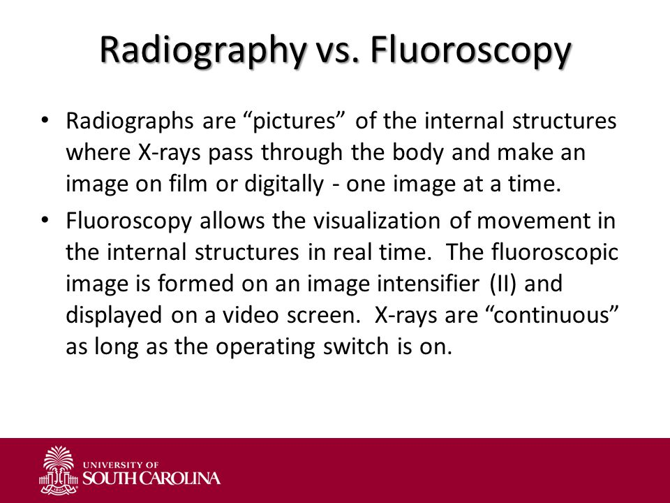 Radiography vs. Fluoroscopy