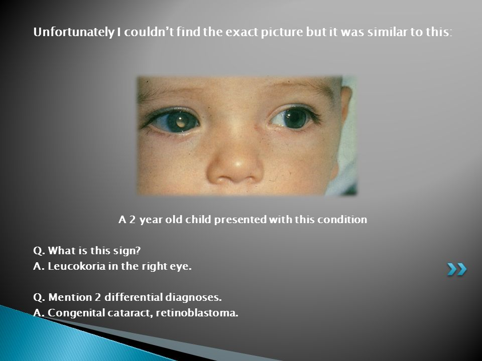 A 2 year old child presented with this condition