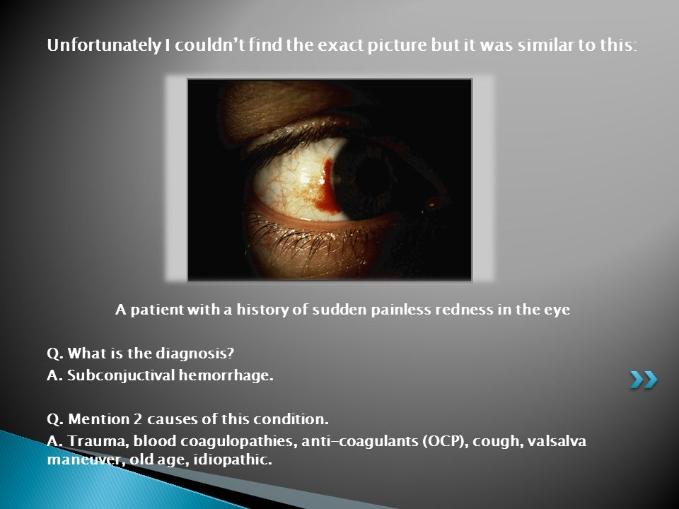 A patient with a history of sudden painless redness in the eye