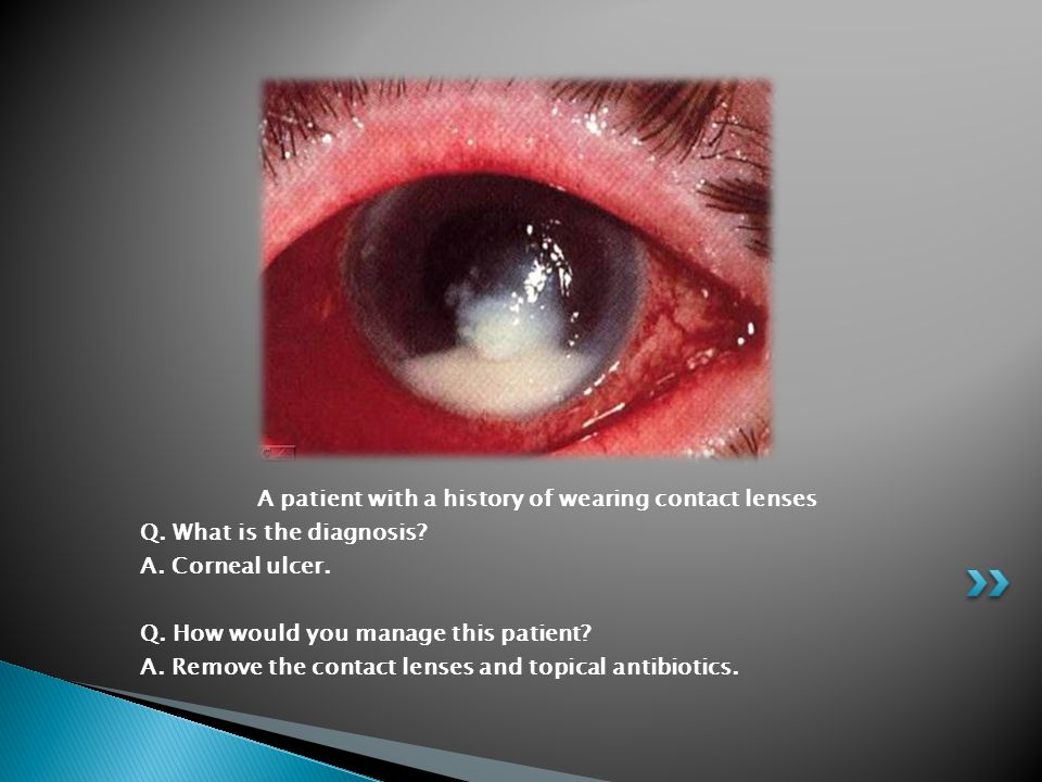 A patient with a history of wearing contact lenses