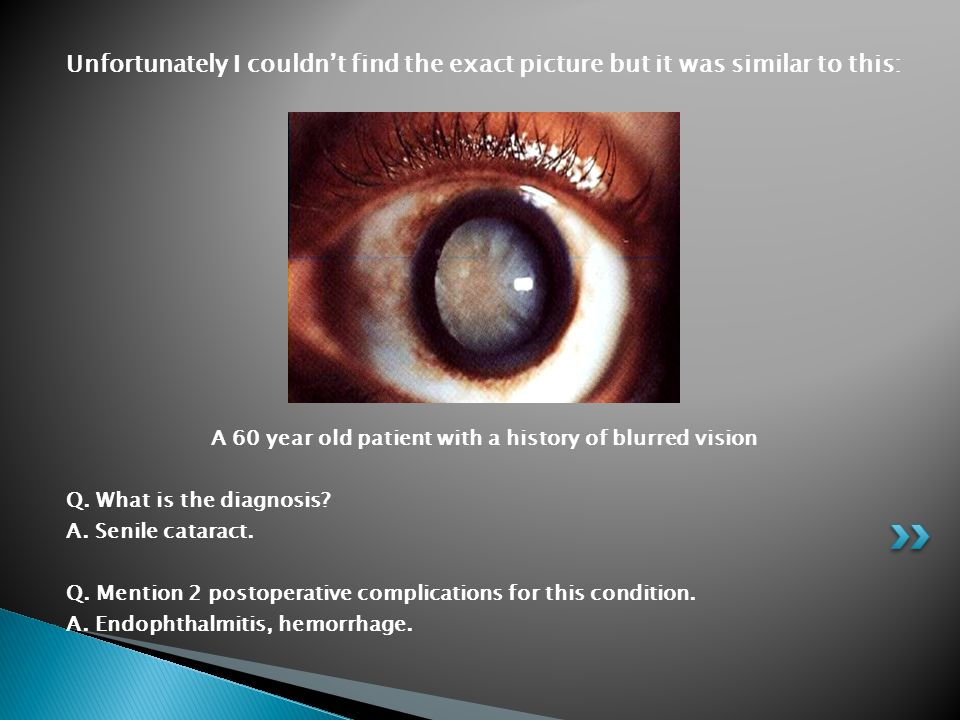 A 60 year old patient with a history of blurred vision