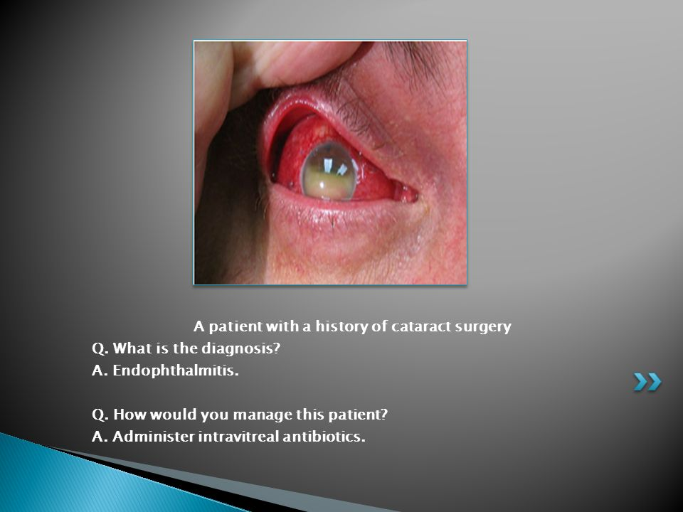 A patient with a history of cataract surgery