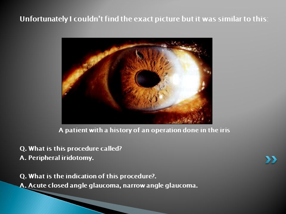 A patient with a history of an operation done in the iris
