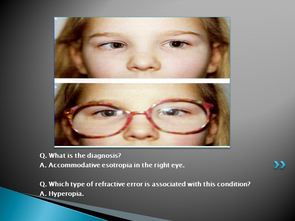 Q. What is the diagnosis A. Accommodative esotropia in the right eye. Q. Which type of refractive error is associated with this condition