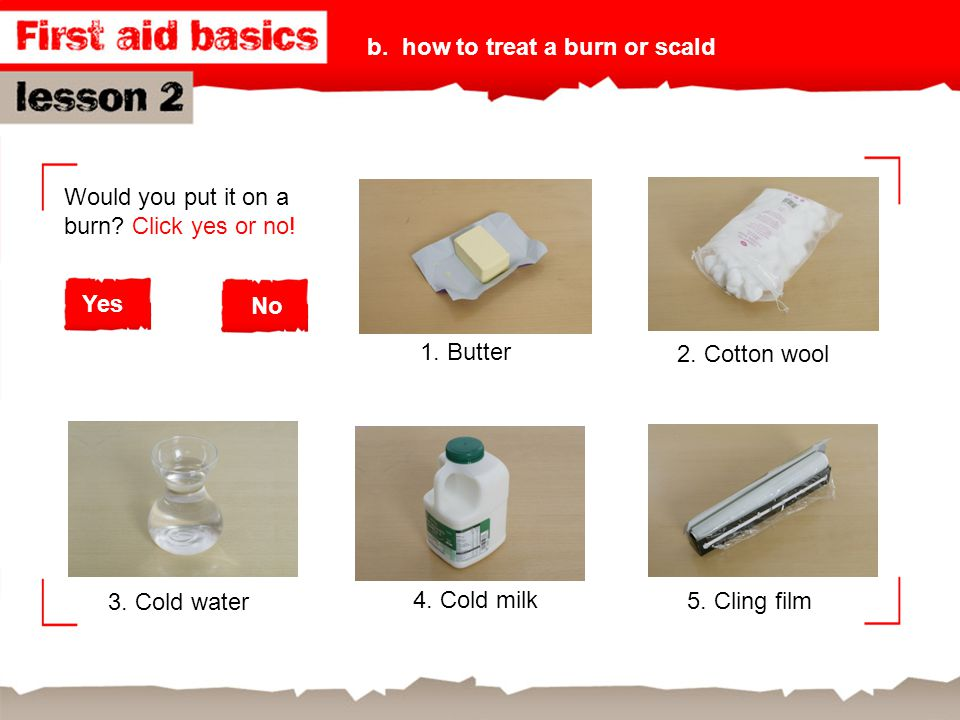 b. how to treat a burn or scald