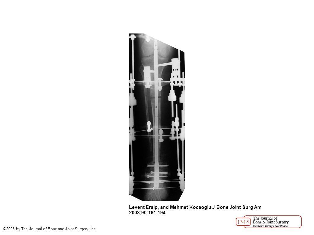 Levent Eralp, and Mehmet Kocaoglu J Bone Joint Surg Am 2008;90:181-194