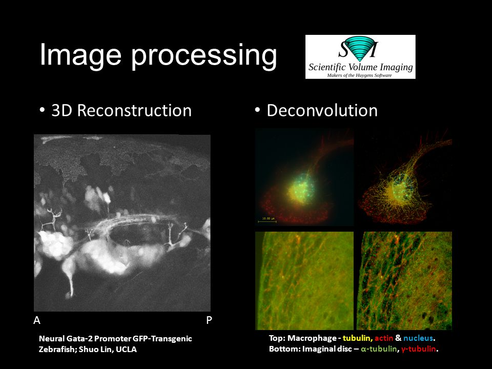 Image processing 3D Reconstruction Deconvolution A A P