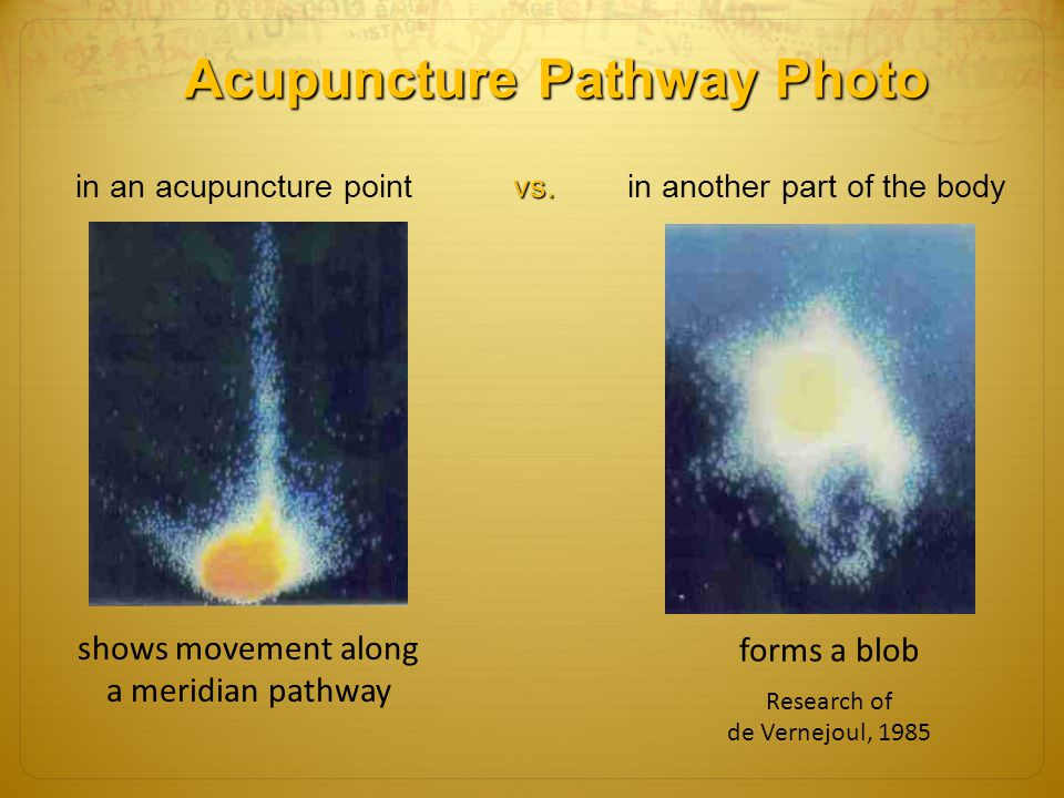 Acupuncture Pathway Photo in an acupuncture point vs