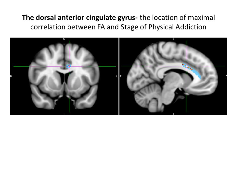 The dorsal anterior cingulate gyrus- the location of maximal correlation between FA and Stage of Physical Addiction