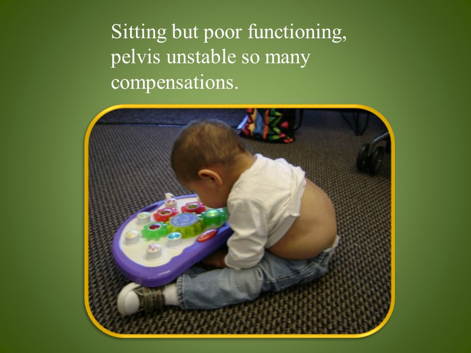 Sitting but poor functioning, pelvis unstable so many compensations.