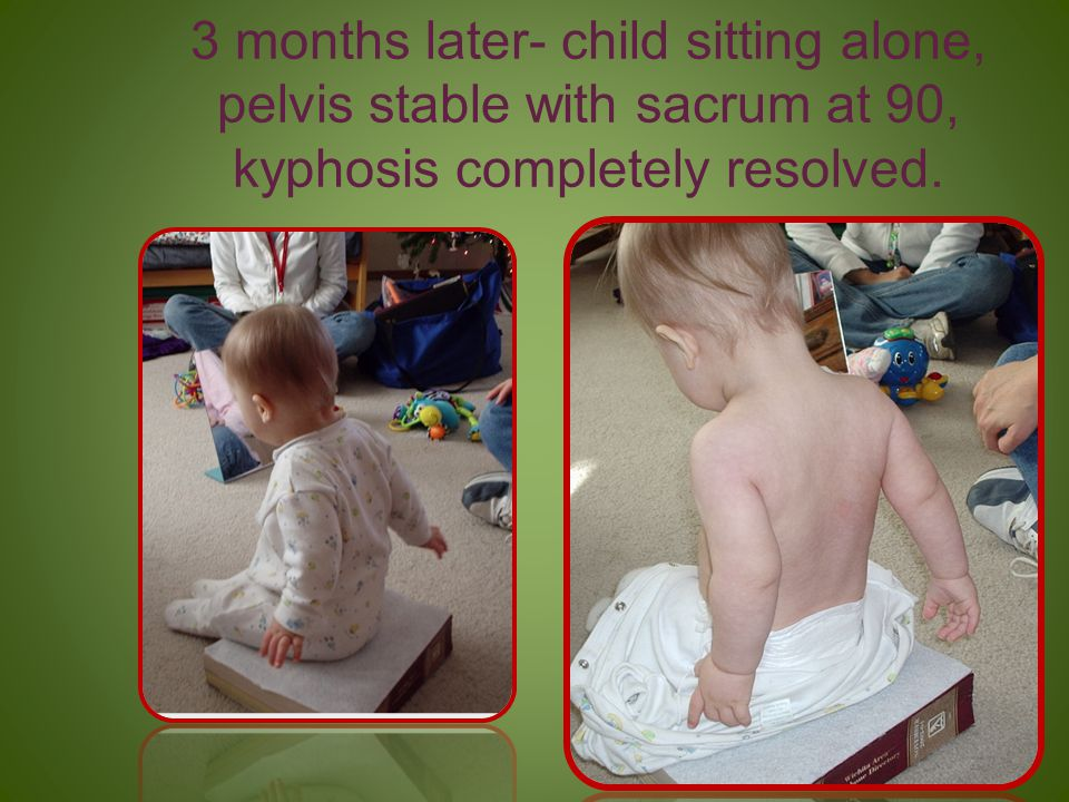 3 months later- child sitting alone, pelvis stable with sacrum at 90, kyphosis completely resolved.