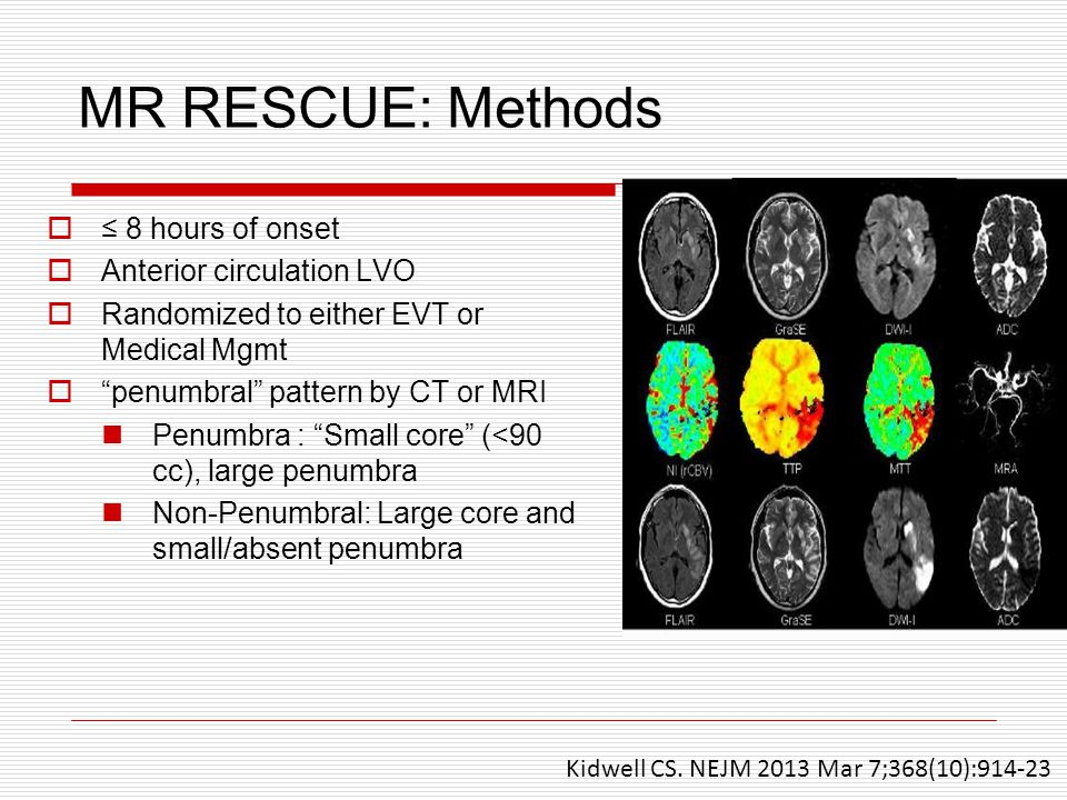 MR RESCUE: Methods ≤ 8 hours of onset Anterior circulation LVO