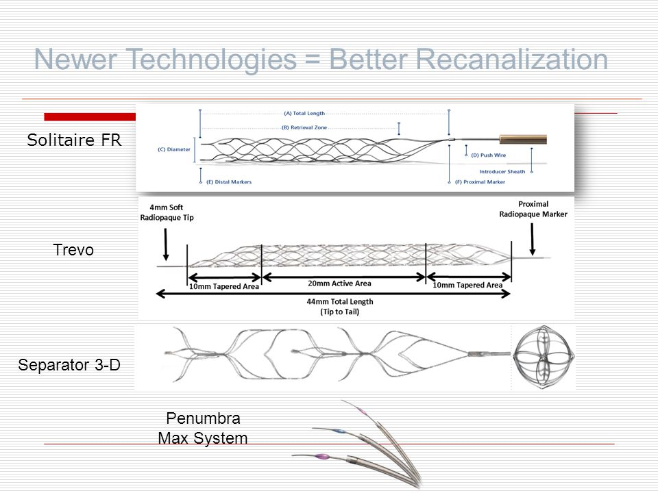 Newer Technologies = Better Recanalization
