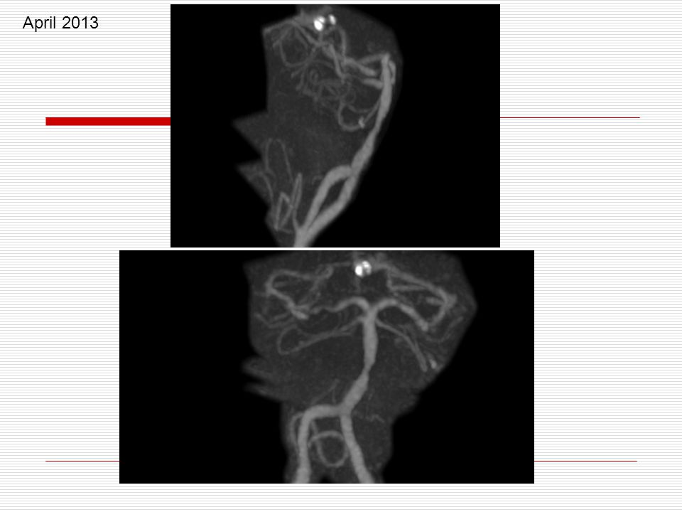 April 2013 30% stenosis 67