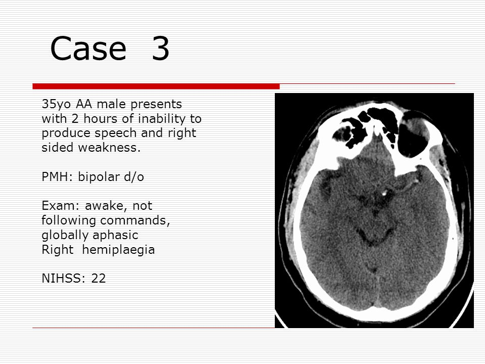 Case 3 35yo AA male presents with 2 hours of inability to produce speech and right sided weakness.