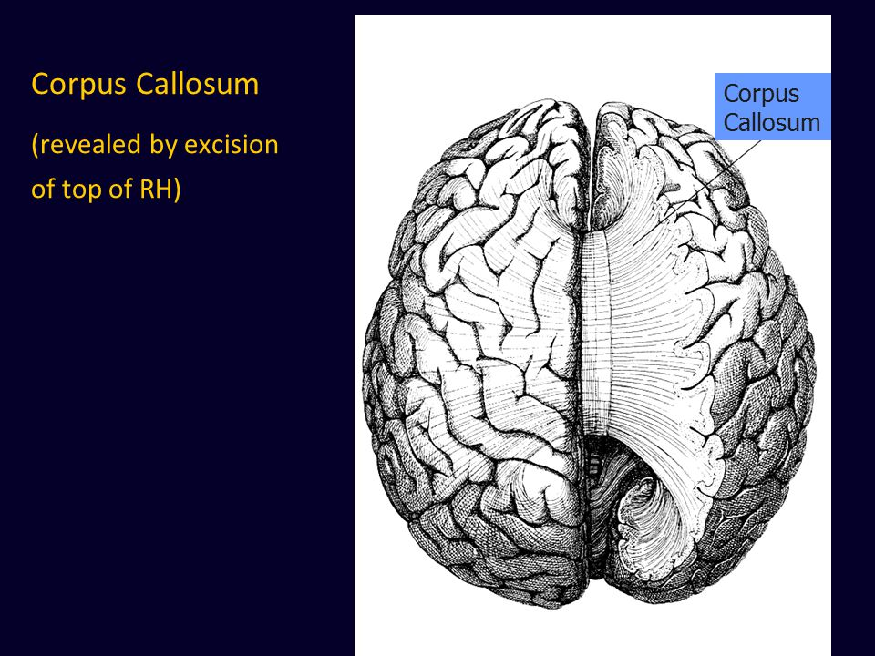 Corpus Callosum (revealed by excision of top of RH)