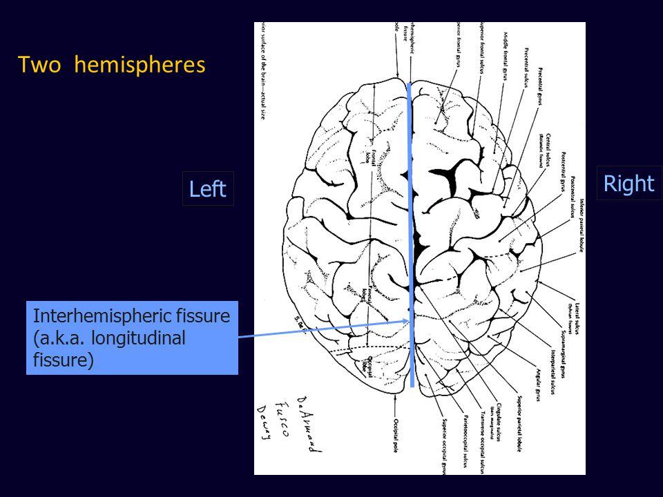 Two hemispheres Right Left