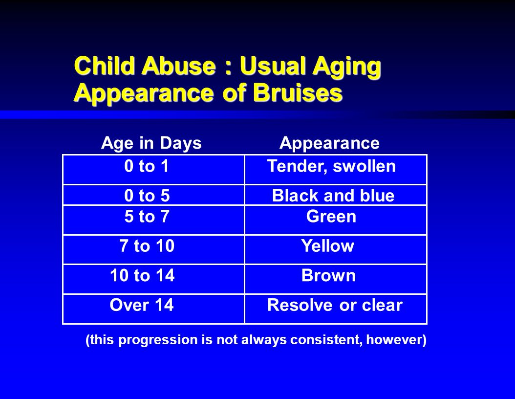Child Abuse : Usual Aging Appearance of Bruises