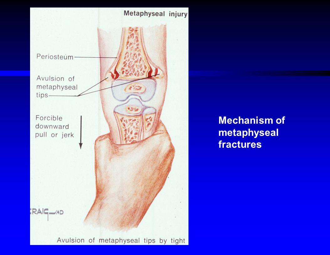 Mechanism of metaphyseal fractures