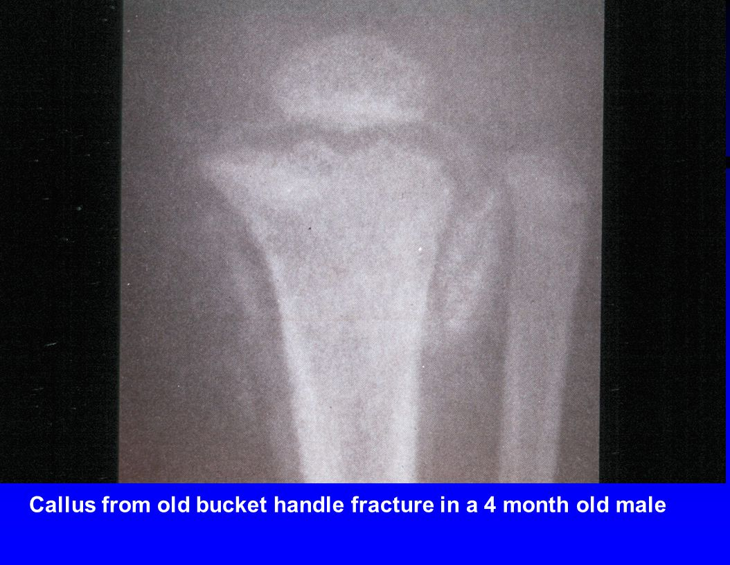 Callus from old bucket handle fracture in a 4 month old male