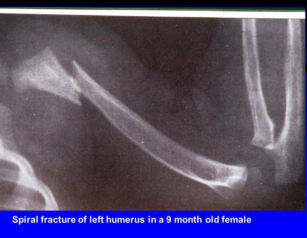 Spiral fracture of left humerus in a 9 month old female