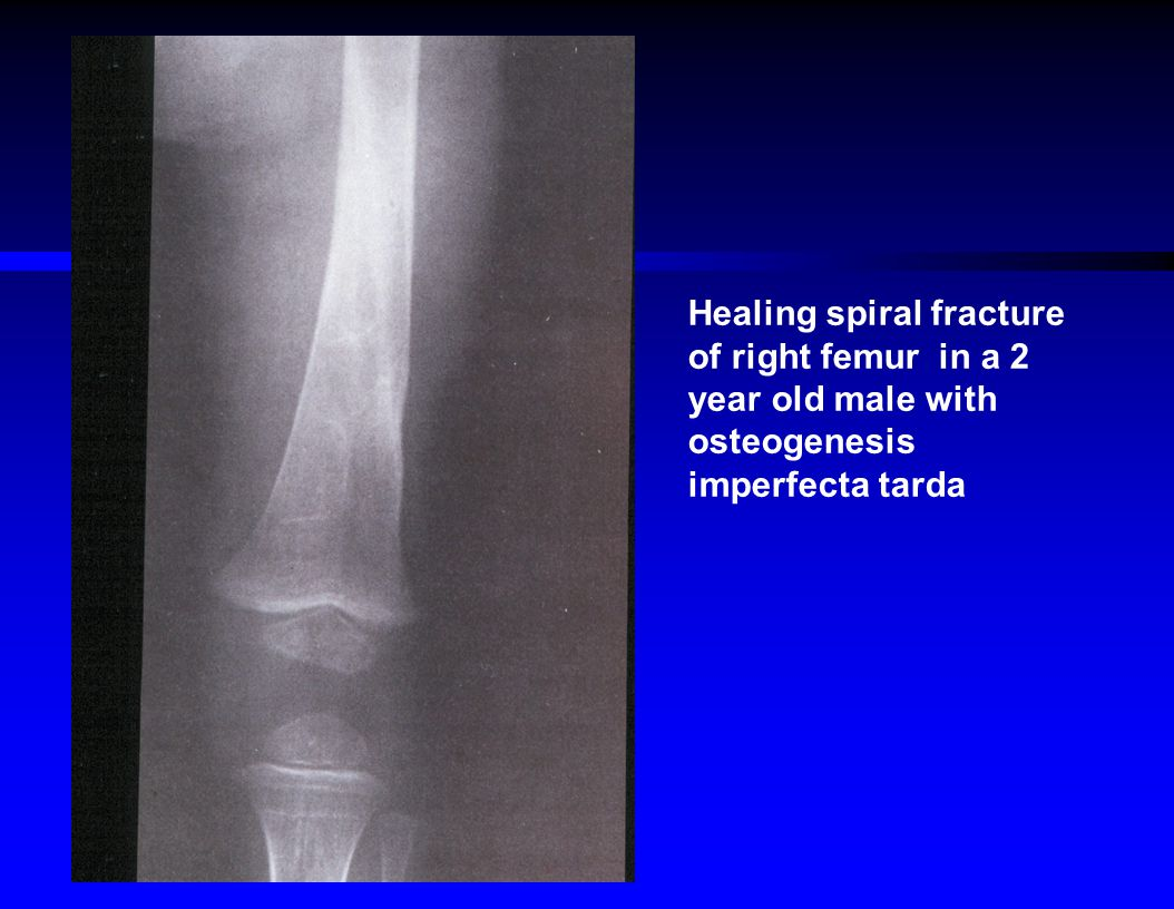Healing spiral fracture of right femur in a 2 year old male with osteogenesis imperfecta tarda