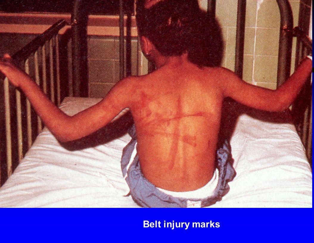 Belt injury marks