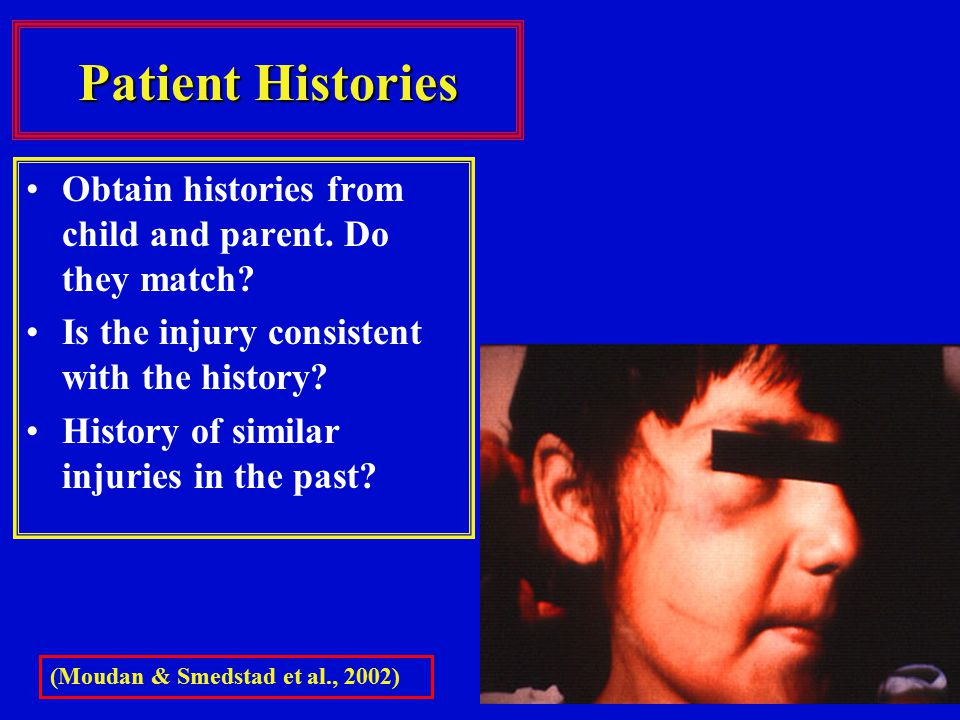 Patient Histories Obtain histories from child and parent. Do they match Is the injury consistent with the history