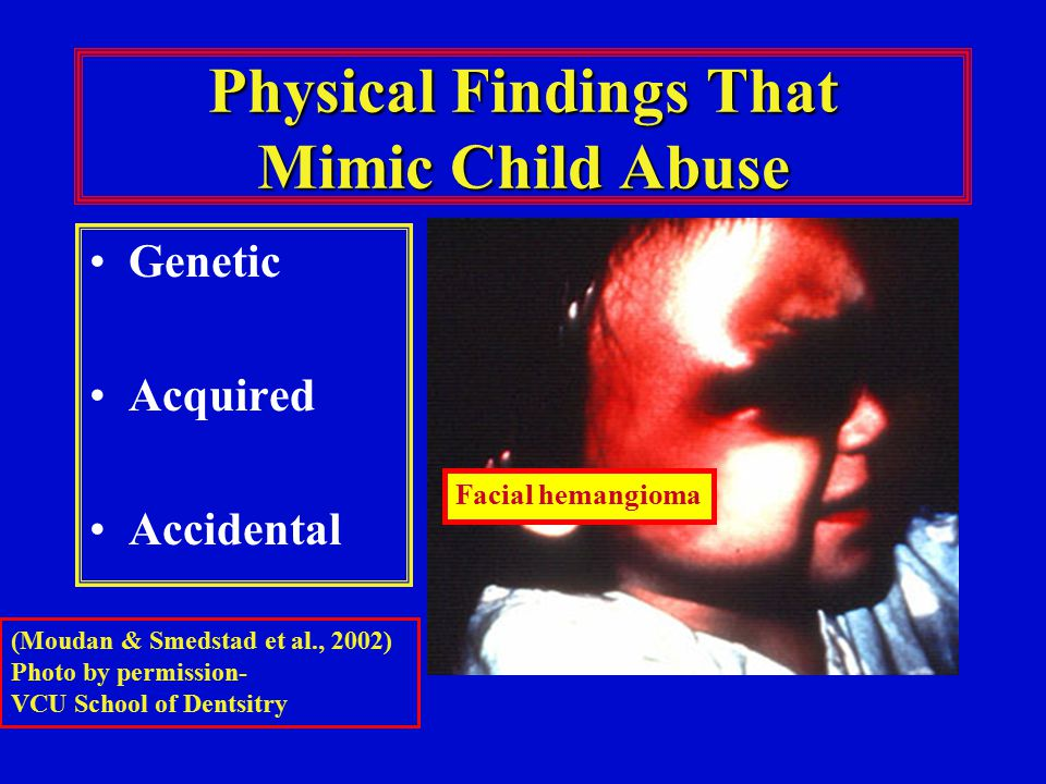 Physical Findings That Mimic Child Abuse