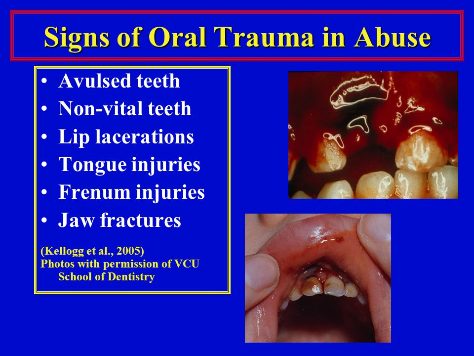 Signs of Oral Trauma in Abuse
