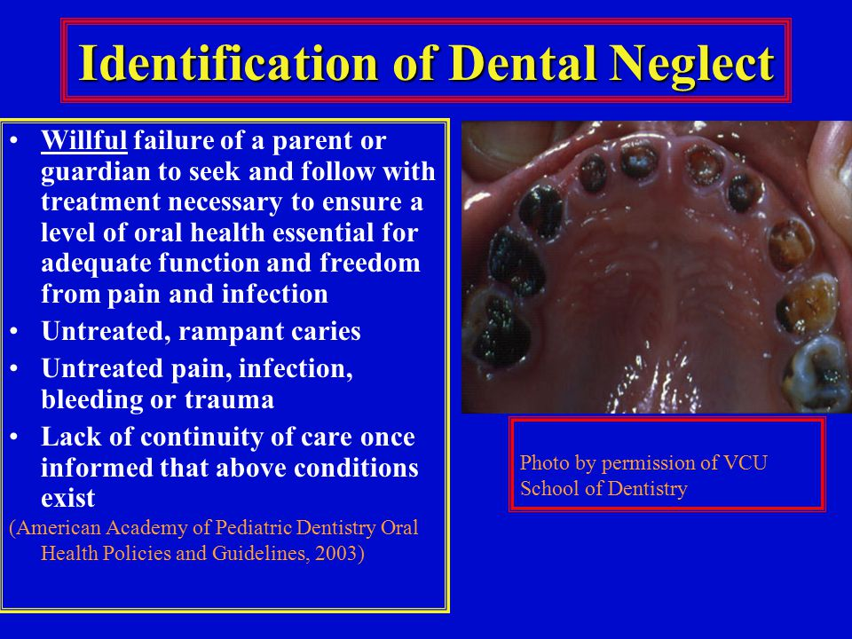 Identification of Dental Neglect