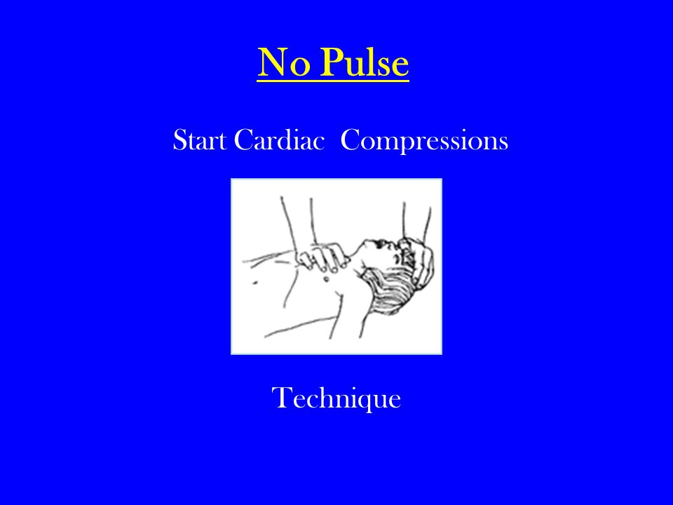 Start Cardiac Compressions