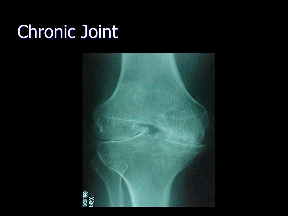 Chronic Joint